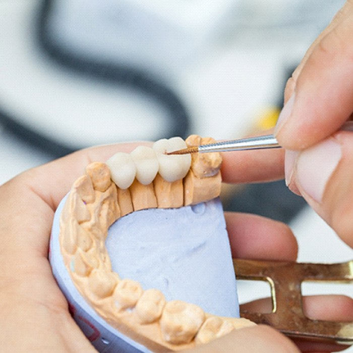 dentist crafting a dental bridge placed on a model of a mouth