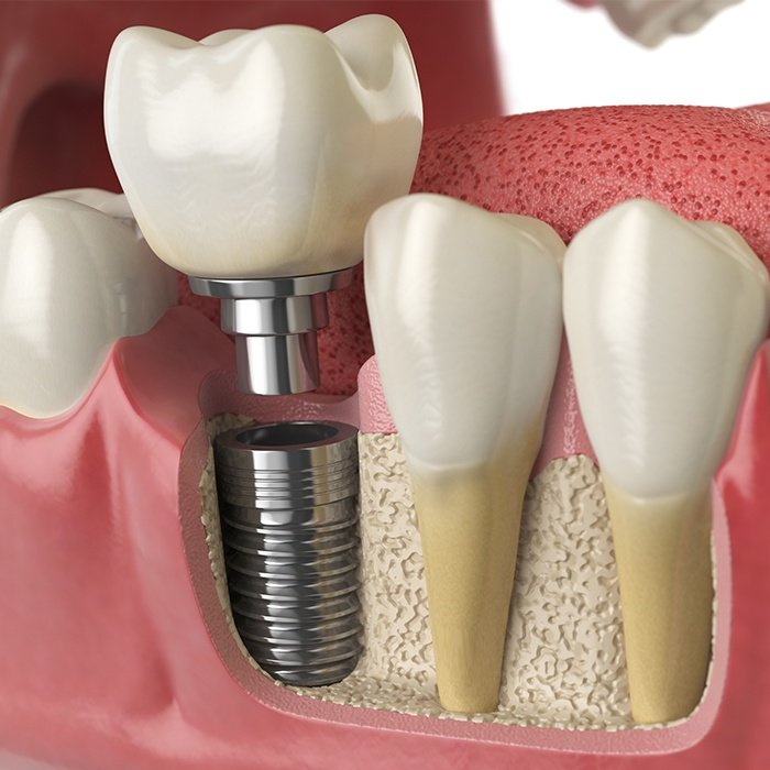 Animation of dental implant process