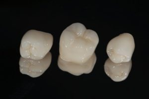 three dental crowns in Lexington against black background