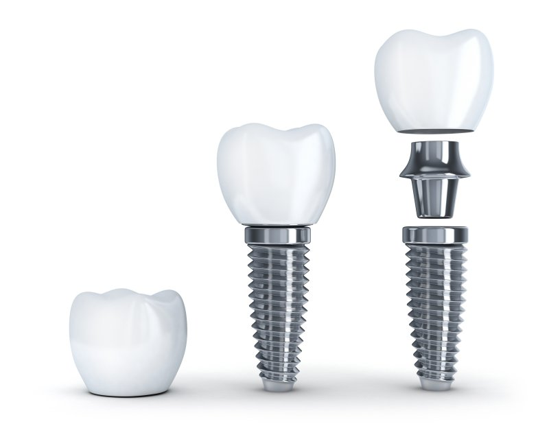 a single tooth dental implant in Lexington and all its parts